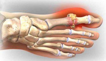 Nguyên nhân dẫn đến bệnh gout.