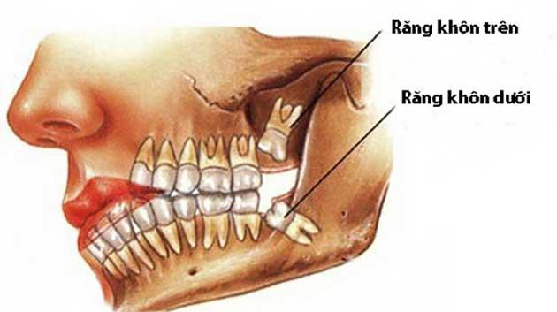 Thế nào là răng khôn?