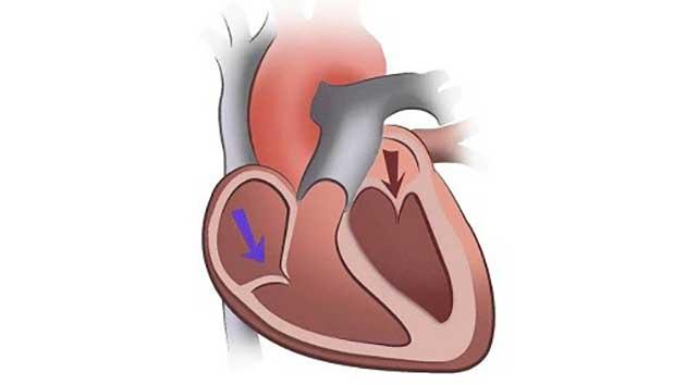 Triệu chứng của hở van tim