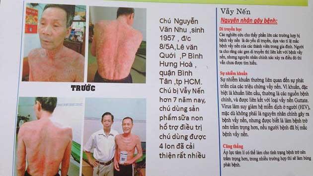 Nhân chứng sử dụng sữa non alpha lipid - Chú Nguyễn Văn Nhu.