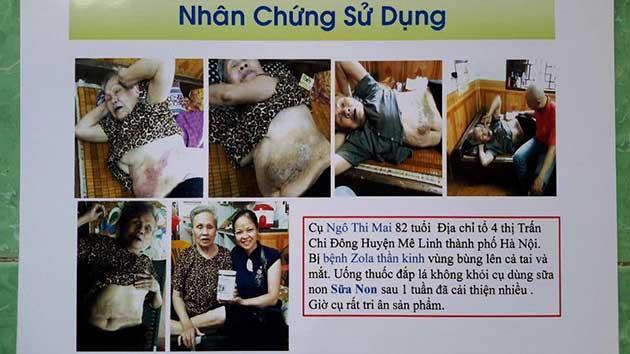 Nhân chứng sử dụng sữa non alpha lipid - Cụ Ngô Thị Mai.